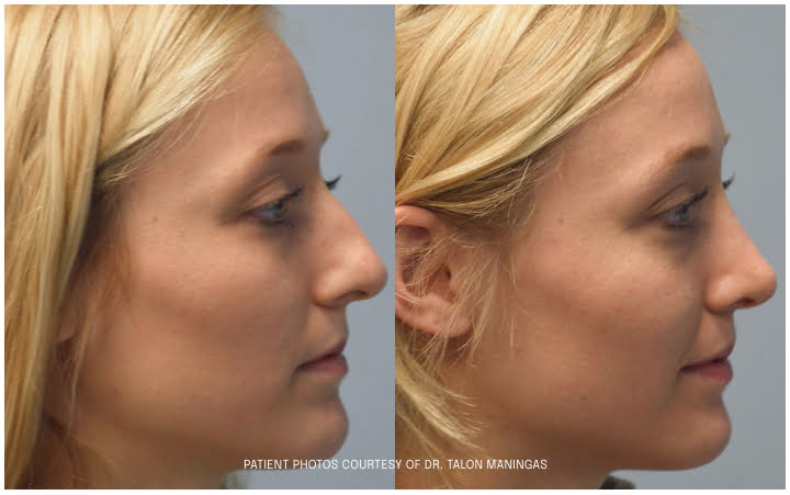 rhinoplasty before and after photo side view
